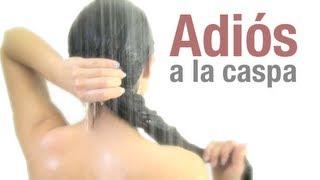 """getlinkyoutube.com-ADIOS A LA CASPA """" Remedio casero"""""""
