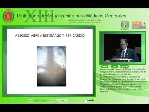 Absceso hepático-Acad. Dr. Armando Vargas Domínguez-10Abr2012