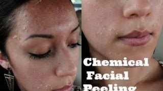 getlinkyoutube.com-PEELING FACIAL en (casa) Dia 1,2 y 3
