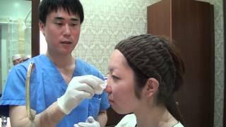 getlinkyoutube.com-高須クリニック 鼻のヒアルロン酸注射によるプチ整形で鼻を高くする 注射直後の腫れ 術後の経過、ダウンタイムについて