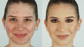 getlinkyoutube.com-How To Correct & Conceal Acne ⎮Heidi Hamoud