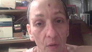 getlinkyoutube.com-Face of Morgellons Disease - Getting the parasites to leave your skin within minutes!