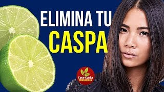 getlinkyoutube.com-EL LIMÓN ES BUENO PARA LA CASPA  | COMO QUITAR LA CASPA CON LIMÓN