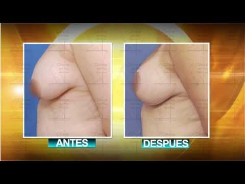 BREAST LIFT & IMPLANTS::LEVANTAMIENTO DE BUSTO E IMPLANTES::MASTOPEXIA::CLINICA DEL REY