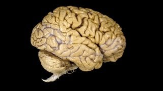 getlinkyoutube.com-What Can You Do Without a Brain?
