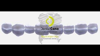 getlinkyoutube.com-Realización de carillas de cerámica paso a paso. Miguel Angel Cano. www.dentalcano.com