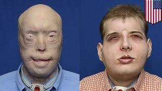 getlinkyoutube.com-Transplantasi wajah paling ekstrim di dunia, operasi plastik gagal membengkokkan wajah - Kompilasi T
