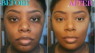 getlinkyoutube.com-How To: Color Correct/Conceal Dark Circles, Acne Scars, & Birthmarks (For Dark Skin)