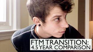 getlinkyoutube.com-FTM Transition: 4.5 years on Testosterone comparison!