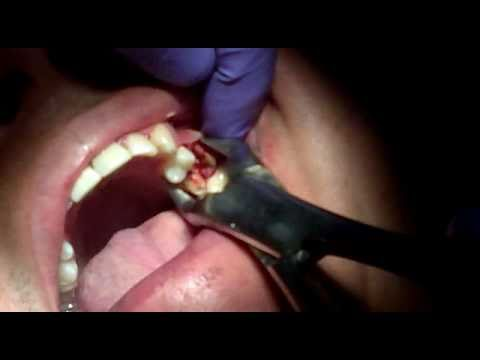 Videos Related To 'extraccion Dental De Restos Radiculares'
