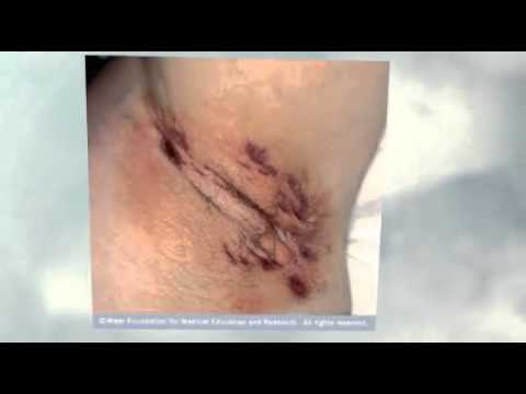 Hidradenitis Suppurativa Scars