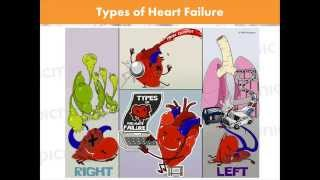 getlinkyoutube.com-Heart Failure Made Easy with Kendall Wyatt & Picmonic | Nursing Webinar