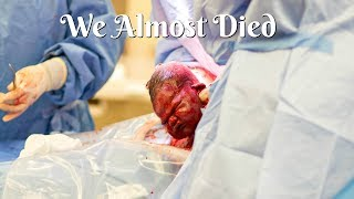 getlinkyoutube.com-OUR VERY SCARY BIRTH STORY! (TISSUE WARNING)