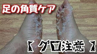 getlinkyoutube.com-【グロ注意】足の角質除去        フットピーリングパック ペロリンを試してみた!