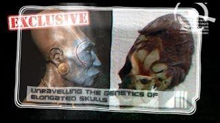 getlinkyoutube.com-Interview with Brien Foerster -- Unravelling the Genetics of Elongated Skulls