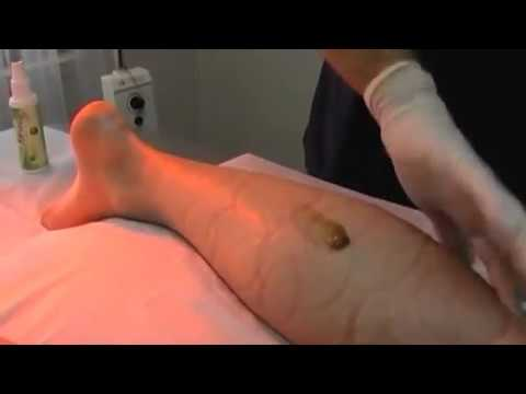 Acupuncture treatment for knee and ankle joint pain