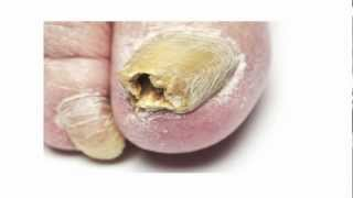 getlinkyoutube.com-Toenail Fungus Treatment - A Fast Cure For Toenail Fungus You Must Try