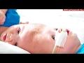 Gemelos nacen pegados por la cabeza mira la transformación tras la operación milagro