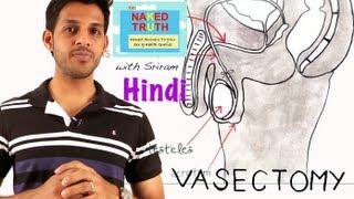 getlinkyoutube.com-What is a Male Vasectomy?- Hindi