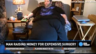 getlinkyoutube.com-Man with 100lb scrotum was told to lose weight