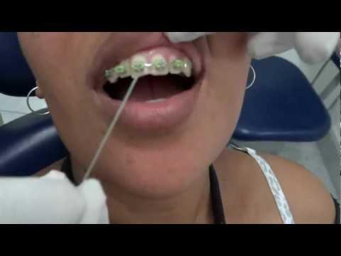 Como passar Fio Dental em Aparelho Ortodôntico Fixo