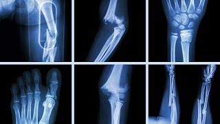 What Happens To Your Body When You Break A Bone