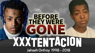 XXXTENTACION-Before-They-Were-GONE-Jahseh-Onfroy-Biography width=