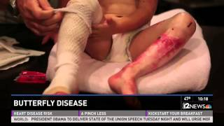 getlinkyoutube.com-(Warning - graphic content) Girl with rare Butterfly Disease.