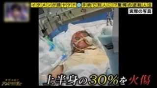 getlinkyoutube.com-イケメンが顔ヤケド 手術で別人に!?驚愕の逆転人生