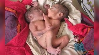 getlinkyoutube.com-Indian Baby Born With 2 Heads and 4 Arms