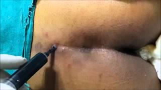 getlinkyoutube.com-What is pilonidal sinus Cyst  Best treatment in Delhi India