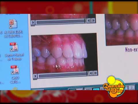 Salud maloclusión clase 2 _ Unidad clínica odontologica garzón