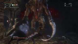getlinkyoutube.com-Bloodborne 呪特化血晶 重打 死体の巨人マラソン  ブラッドボーン Chalice Dungeon Undead Giant