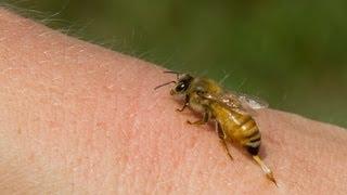getlinkyoutube.com-فوائد لسعة النحل