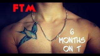 getlinkyoutube.com-FTM Trans Man - 6 Months on Testosterone