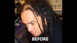 getlinkyoutube.com-Dreadlock Repairs for thinning Dreadlocks