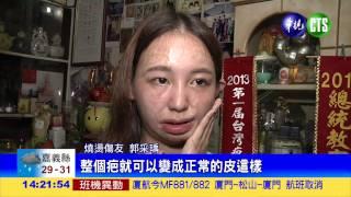 getlinkyoutube.com-燒燙傷友郭采瑀 為塵爆患者加油