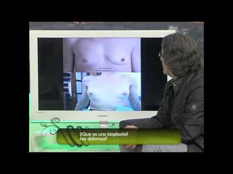 BIOPLASTIA Y RINOMODELACION DR. RAFAEL GALVEZ ENTREVISTA EN TV.