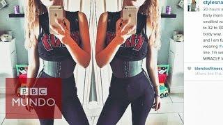 Los peligros de usar fajas de entrenamiento para afinar la cintura