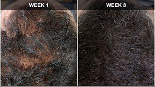 getlinkyoutube.com-Hair Regrowth Experiment Week 8 Results