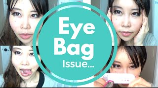 getlinkyoutube.com-How to Reduce the Bags under Your Eyes | Train Lower Eyelid Muscles