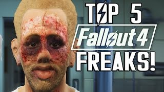 getlinkyoutube.com-FALLOUT 4 - TOP 5 UGLY CHARACTER CREATIONS!