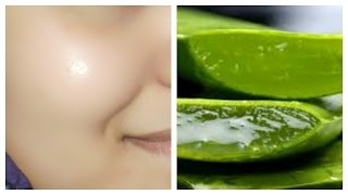 getlinkyoutube.com-How to get clear, glowing, spotless skin by using aloe Vera gel
