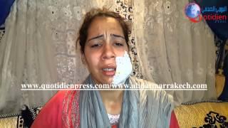 getlinkyoutube.com-حصري : فيديو صادم للطيفة التي شوه زوجها وجهها بسكين بمراكش