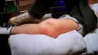 getlinkyoutube.com-Dislocated Kneecap - Bizarre ER
