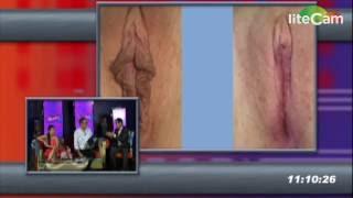 getlinkyoutube.com-Reconstruccion de Labios Vaginales, Labioplastía, con el Dr. Marco  Priego, Villahermosa