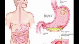 getlinkyoutube.com-PEPTIC ULCER 1 HEALTH EDUCATION INFECTION CONTROL URDU  HINDI