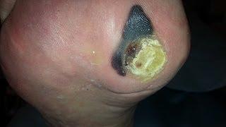 getlinkyoutube.com-Eliminación y cura de callosidad preulcerada. www.clinicacentralmiranda.com