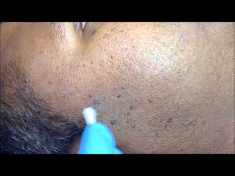 Seborrhoeic Keratosis side of face
