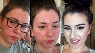 getlinkyoutube.com-UPDATED | Acne Coverage Foundation Routine